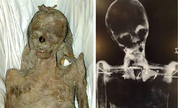 Misisipi-mumija