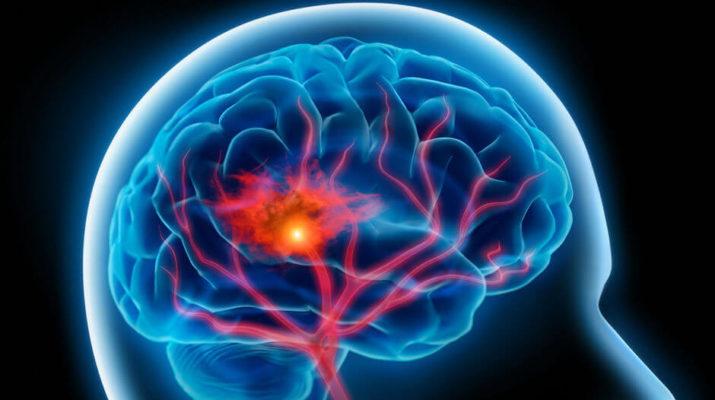 U decembru je moždani udar najčešći