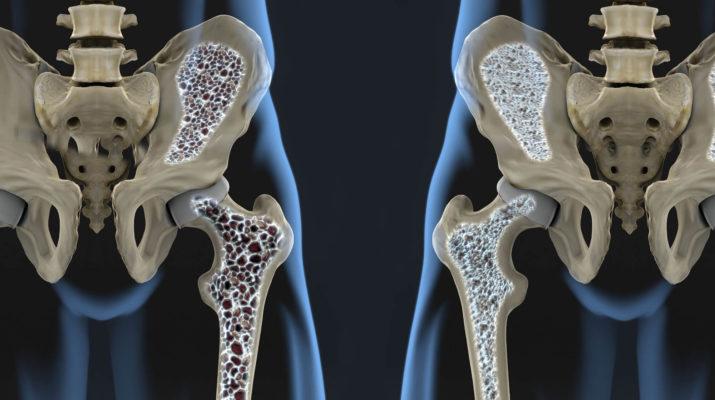 Sve o ostеoporozi