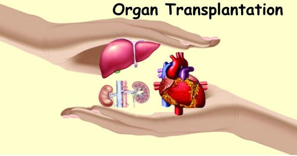 Krađa organa ili doniranje
