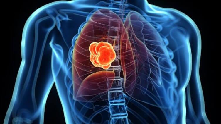 Svetski dan borbe protiv raka pluća